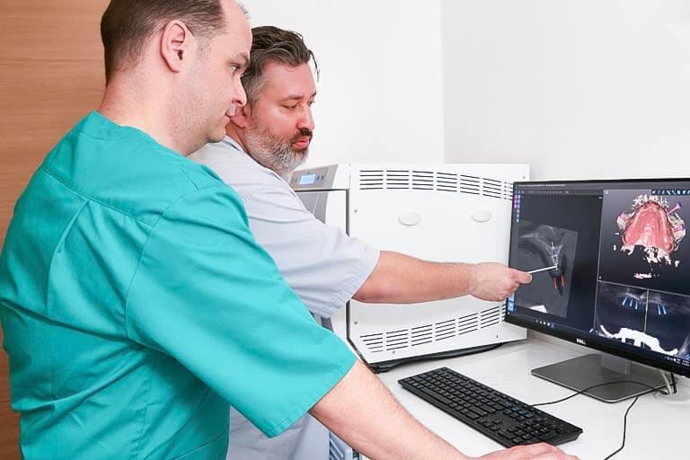 All-on-4 Zahnimplantate - 3D Planung