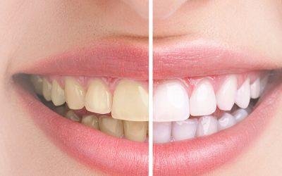 Ist die Farbe der Zähne eine erbliche Eigenschaft?
